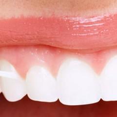 Utilizzo del filo interdentale per avere denti più bianchi